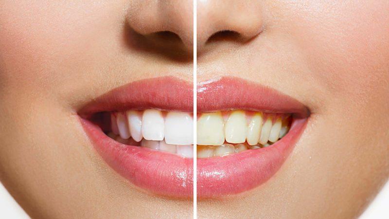 दाँतलाई यसरी बनाउनुहोस् बलियो र चम्किलो